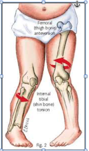 Internal Tibia Rotation